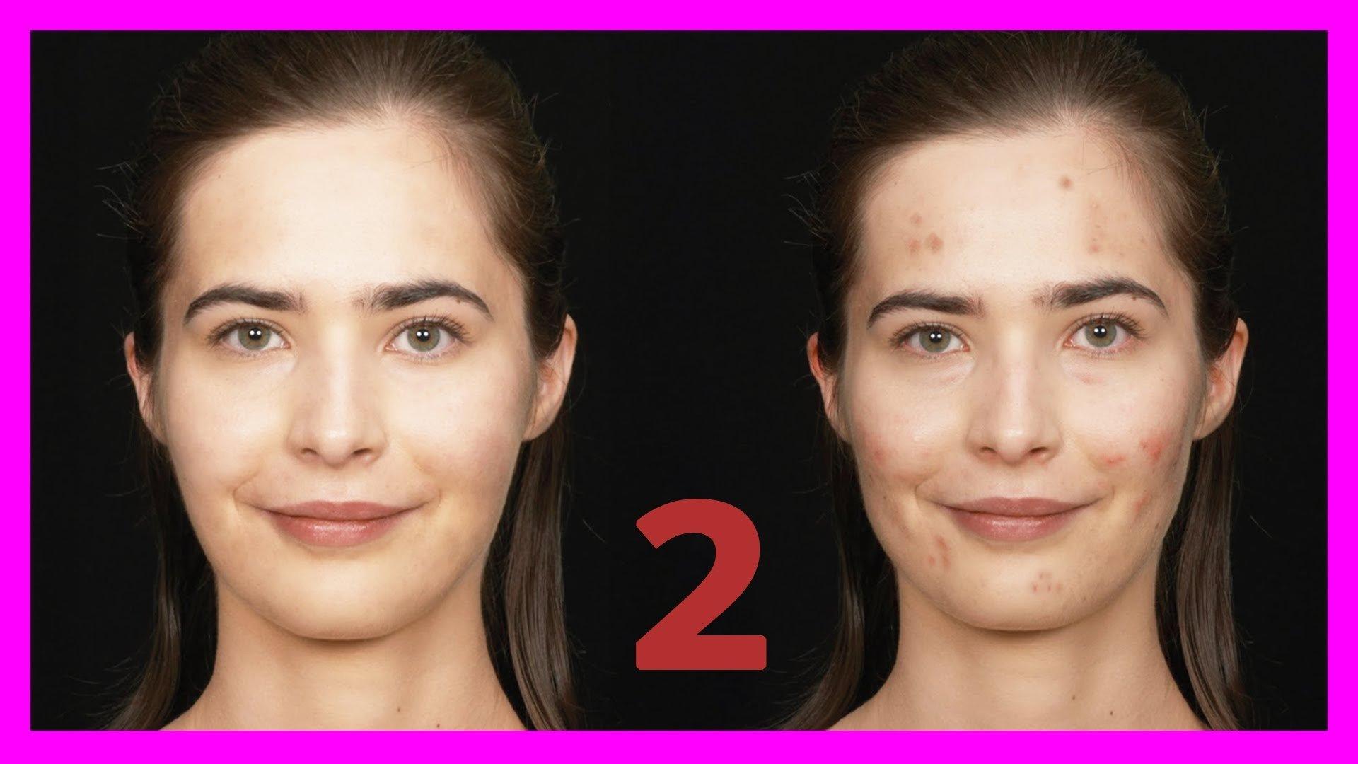 Como quitar granos manchas de la cara